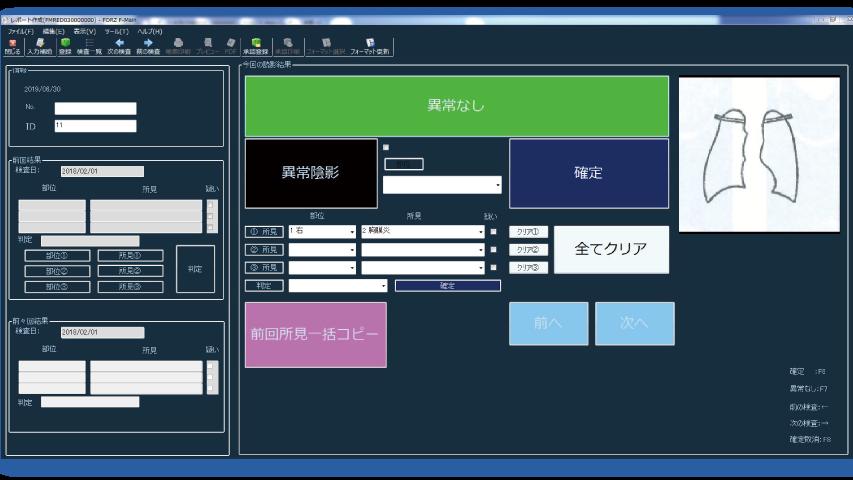 レポート入力画面(例)